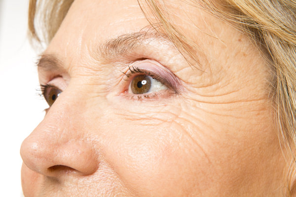 Strategies To Remove Age Spots For A Healthier And Younger-Looking Complexion